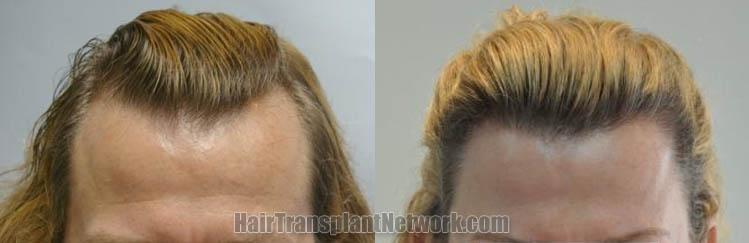 hair-transplantation-photo-front-164750