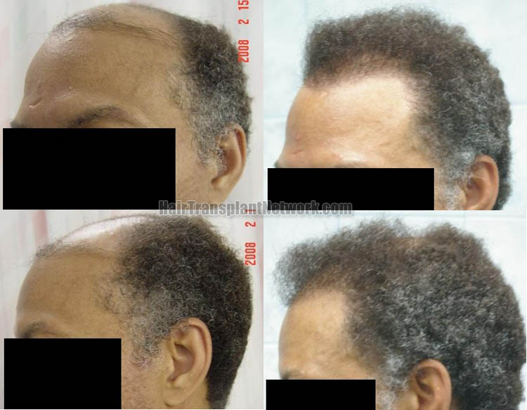hair-transplantation-photo-left-166197