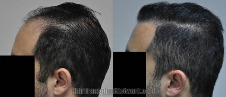 hair-transplantation-photo-left-168719