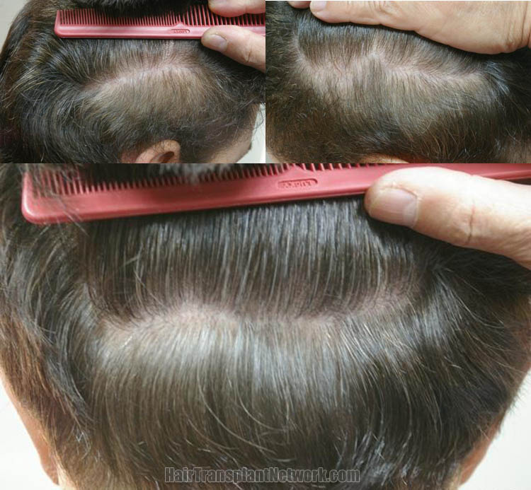 hair-transplantation-photo-scar-163192