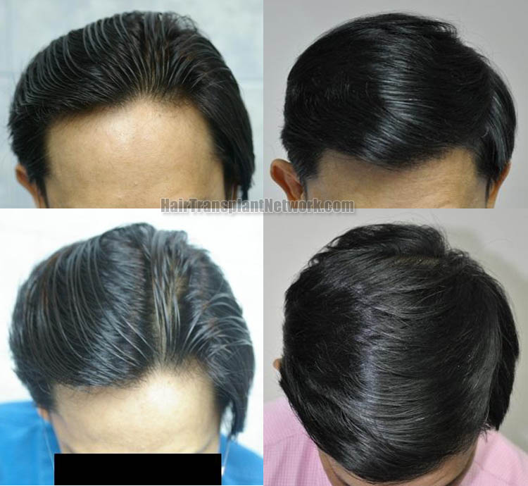 hair-transplantation-photo-top-164349