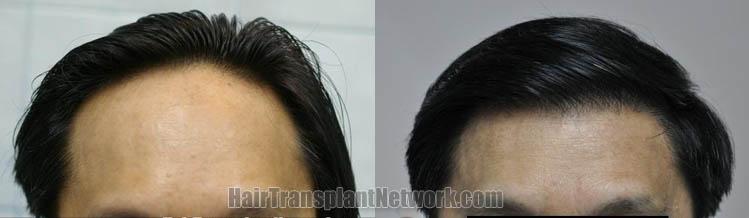 hair-transplantation-photos-front-164349