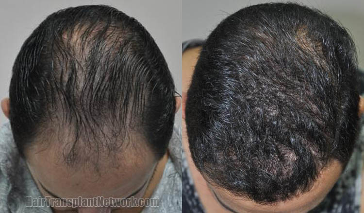 hair-transplantation-photos-top-168719