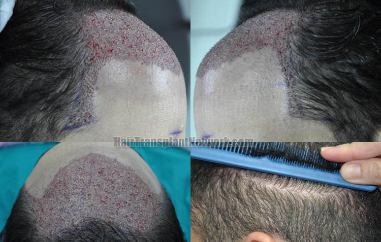 hair-transplantation-picture-impo-scar-168719