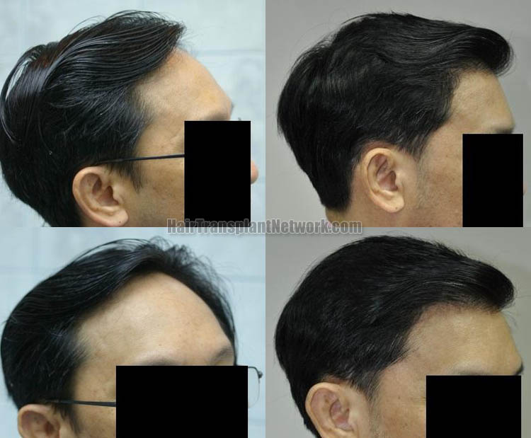 hair-transplantation-picture-right-164349