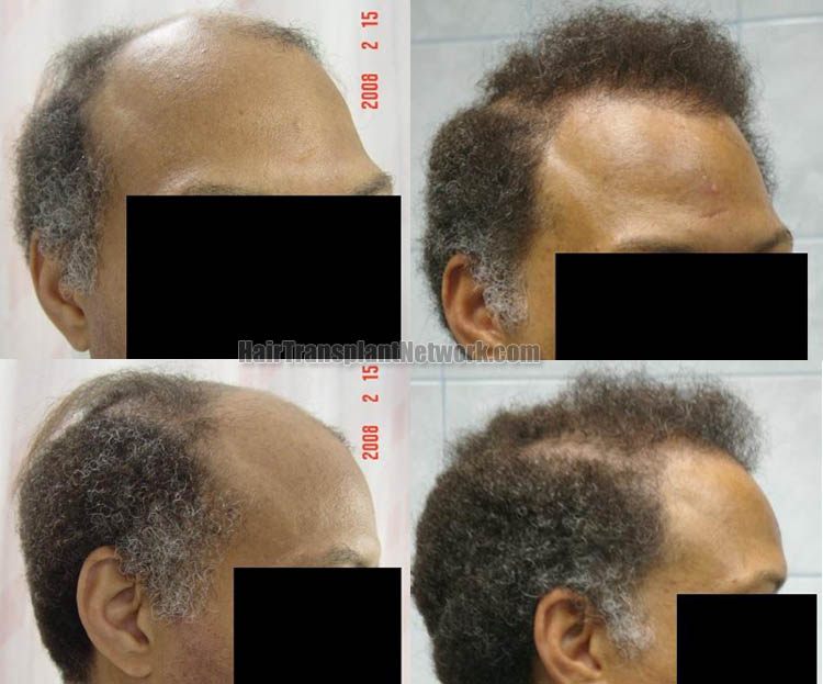 hair-transplantation-picture-right-166197