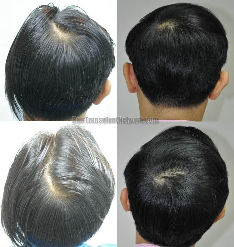 hair-transplantation-pictures-back-164349