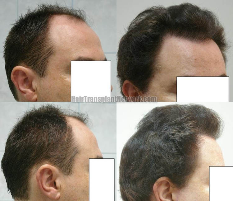 hair-transplantation-pictures-right-163192