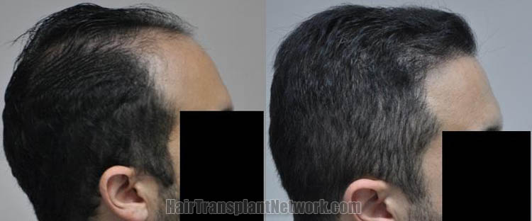 hair-transplantation-pictures-right-168719