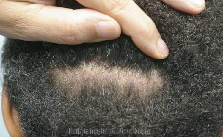 hair-transplantation-pictures-scar-166197