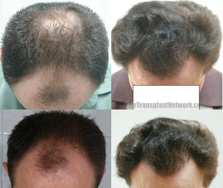 hair-transplantation-top-163192