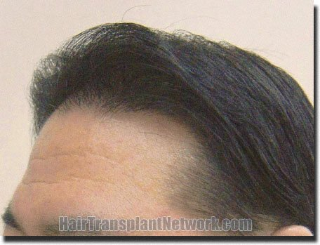 left-after-hair-transplant-2078-grafts-Dr-Pathomvanich
