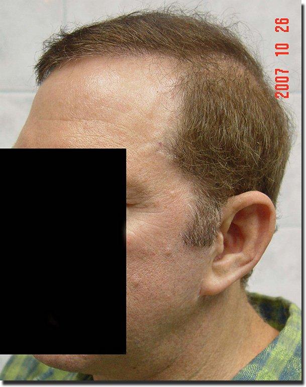 left-after-hair-transplant-6620-grafts-Dr-Pathomvanich