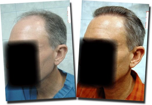 left-before-after--hair-transplant-2995-grafts-Dr-Pathomvanich