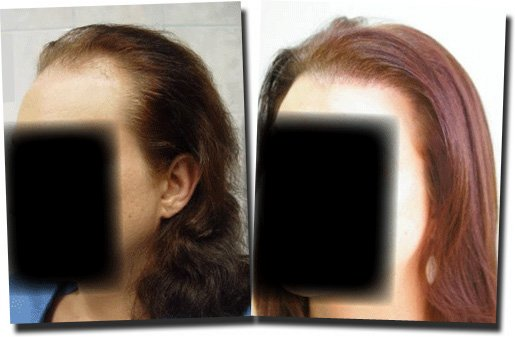 left-before-after-hair-transplant-3092-grafts-Dr-Pathomvanich