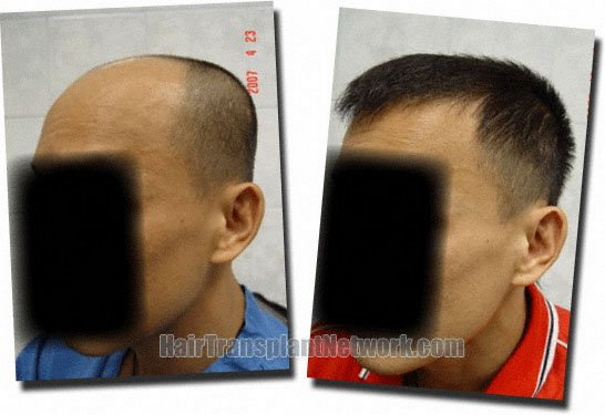 left-before-after-hair-transplant-3211-grafts-Dr-Pathomvanich