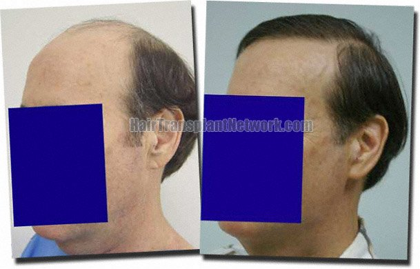 left-before-after-hair-transplant-7705-grafts-Dr-Pathomvanich