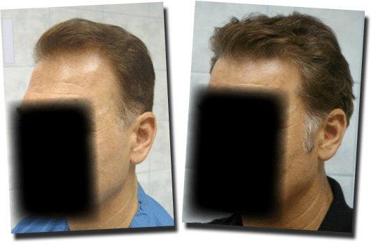 left-before-after-hair-transplant-Dr-Pathomvanich