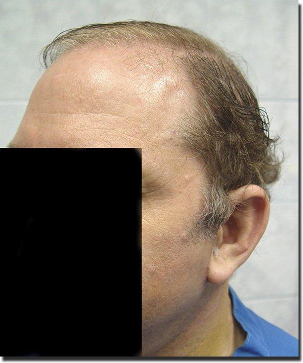 left-before-hair-transplant-6620-grafts-Dr-Pathomvanich