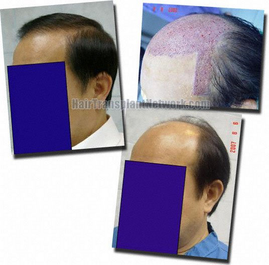 left-hair-transplant-3659-grafts-Dr-Pathomvanich