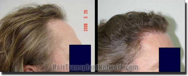 pathomvanich-2290-before-and-after-right