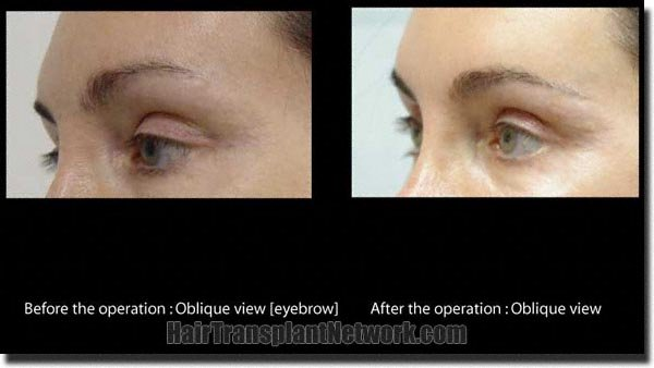 pathomvanich-2351-before-and-after-eyebrows-left