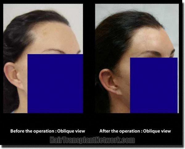 pathomvanich-2351-before-and-after-eyebrows-right-oblique