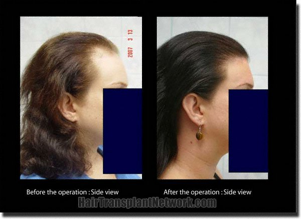 pathomvanich-5473-before-and-after-right