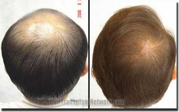 pathomvanich-7253-before-and-after-crown