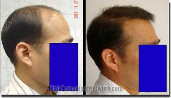 pathomvanich-7253-before-and-after-right