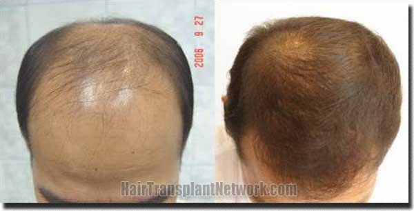pathomvanich-7253-before-and-after-top