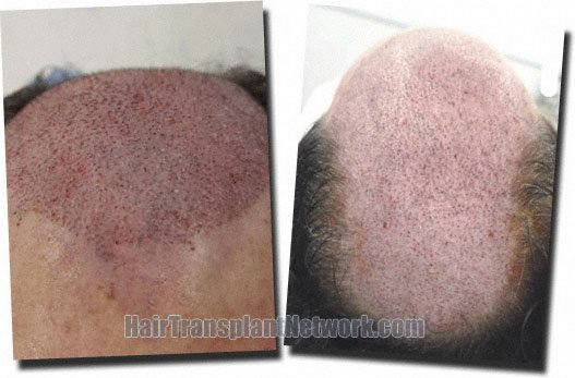 post-op-top-front-hair-transplant-3752-grafts-Dr-Pathomvanich