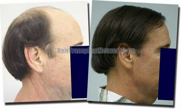 right-before-after-hair-transplant-7705-grafts-Dr-Pathomvanich