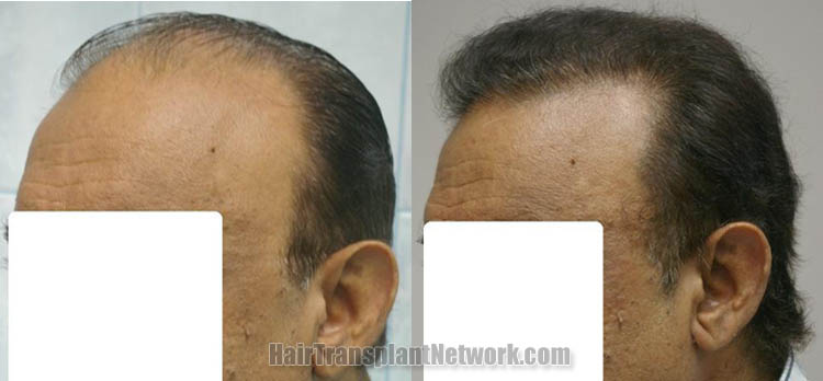 surgical-hair-restoration-image-left-161390