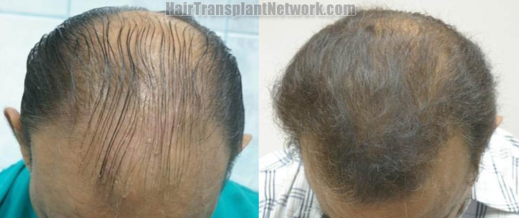 surgical-hair-restoration-images-top-161390