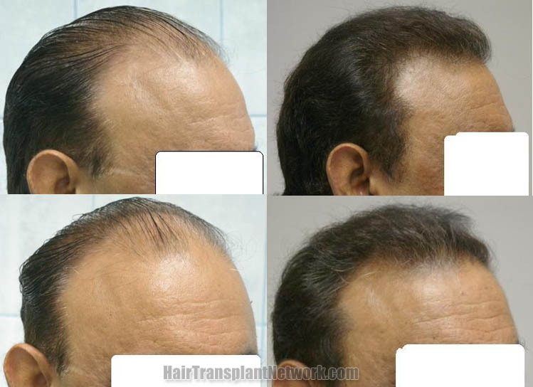 surgical-hair-restoration-photo-right-161390