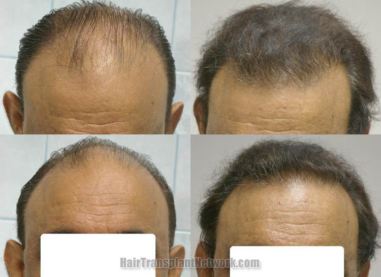 surgical-hair-restoration-photos-front-161390