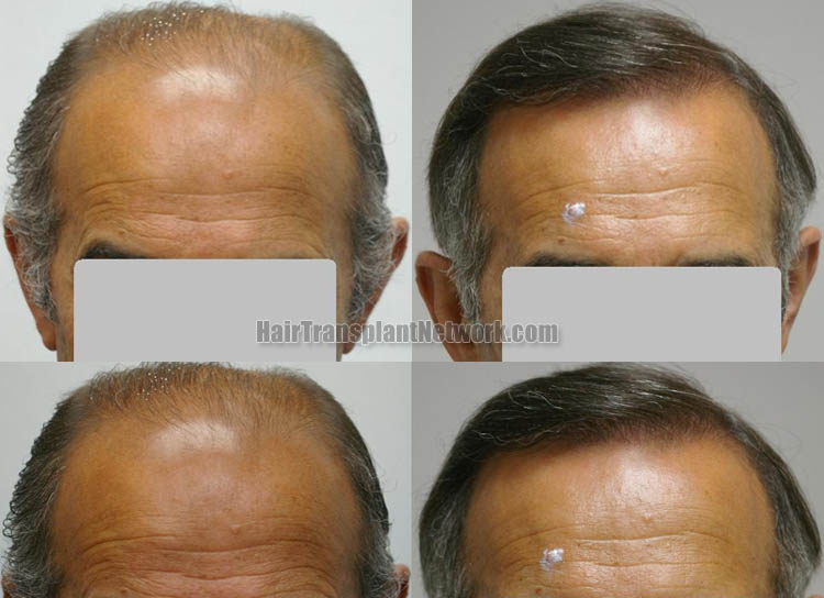 surgical-hair-transplant-front-159680_1