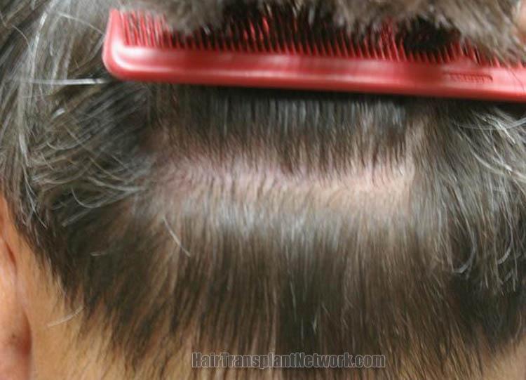 surgical-hair-transplant-image-scar-159680_1