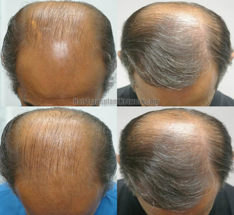 surgical-hair-transplant-photo-top-159680_1