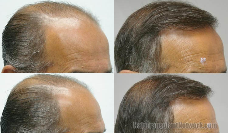 surgical-hair-transplant-photos-right-159680_1