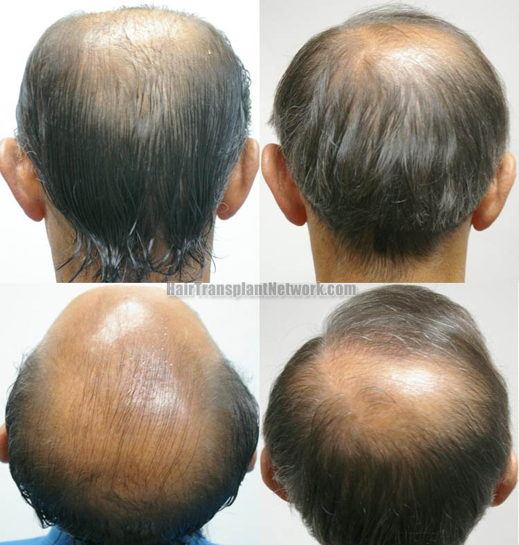 surgical-hair-transplant-picture-back-159680_1