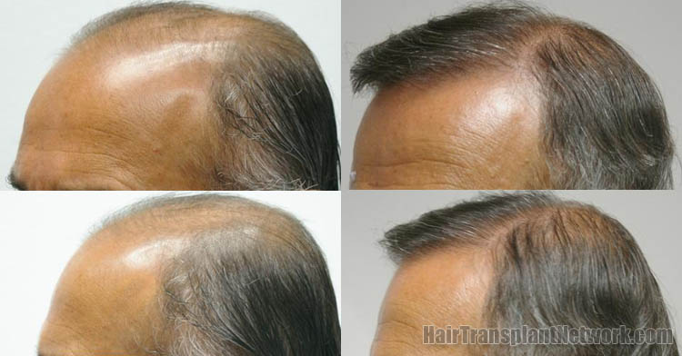 surgical-hair-transplant-pictures-left-159680_1