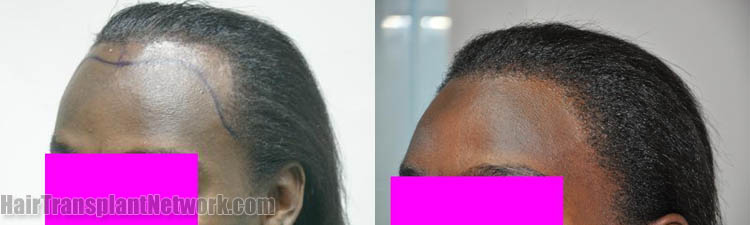 surgical-hair-transplant-procedure-image-left-163581