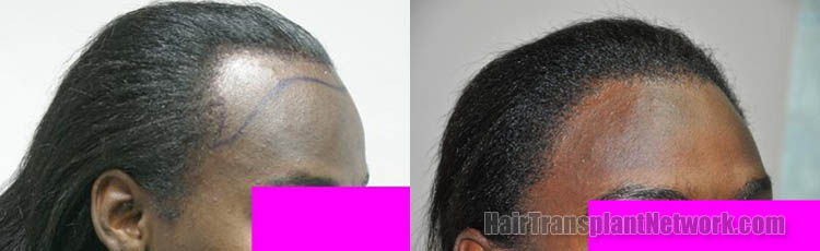 surgical-hair-transplant-procedure-photo-right-163581