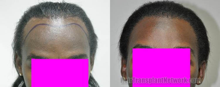 surgical-hair-transplant-procedure-photos-front-163581