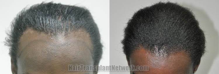 surgical-hair-transplant-procedure-top-163581