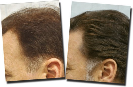 temporal-area-before-after-hair-transplant-Dr-Pathomvanich