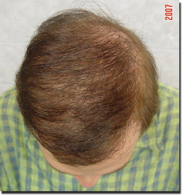 top-after-hair-transplant-6620-grafts-Dr-Pathomvanich