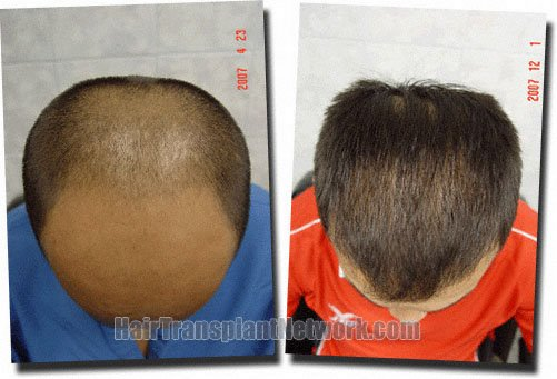 top-before-after-hair-transplant-3211-grafts-Dr-Pathomvanich